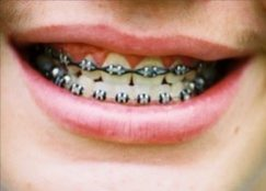Smiles with braces