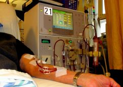 An arm is hooked up to a dialysis machine in a patient room